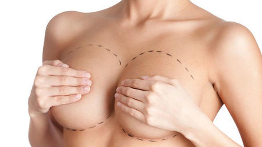 Marcado de senos